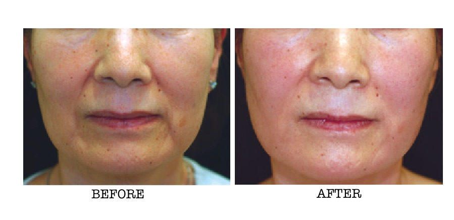 PRP Therapy around the mouth area before and after shot