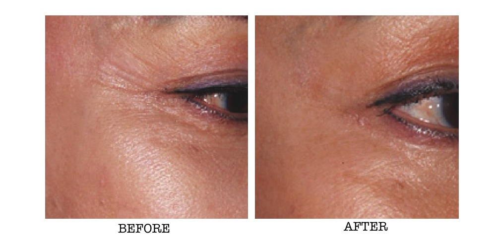 PRP Therapy around the eye area before and after shot