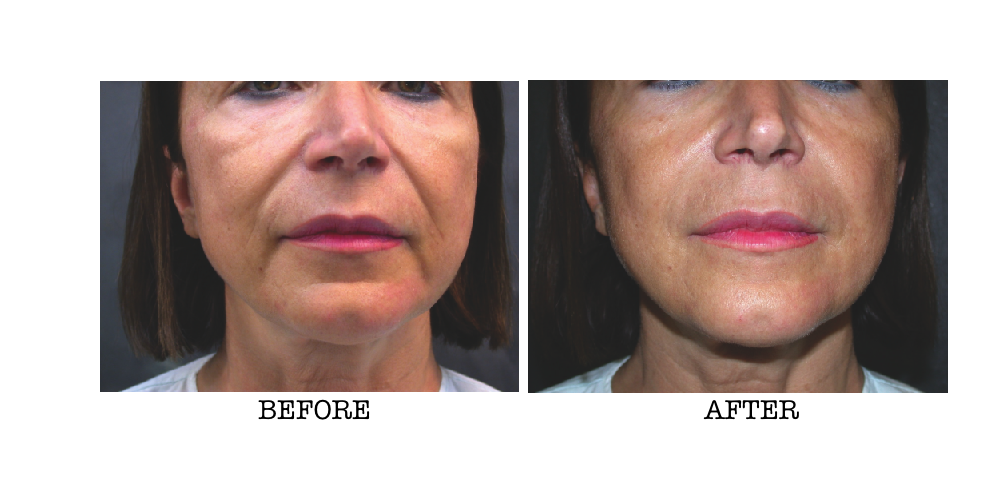 PRP Therapy around the mouth area shows extensive improvements before and after shot