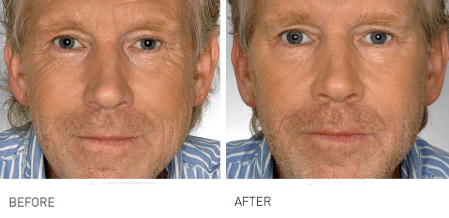 full face rejuvenation before and after 3