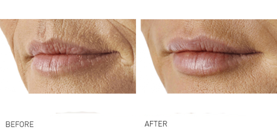 lip lines 2