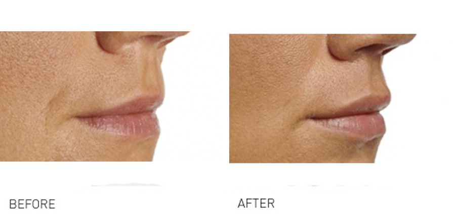 Lip volume & rejuvenation can make you look younger