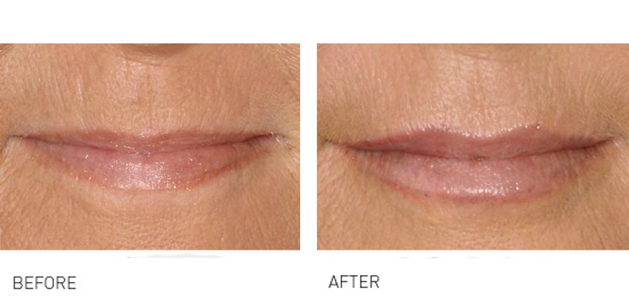 Lip volume & rejuvenation before and after shots
