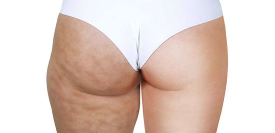 Fat & Cellulite Reduction images before and after treatment