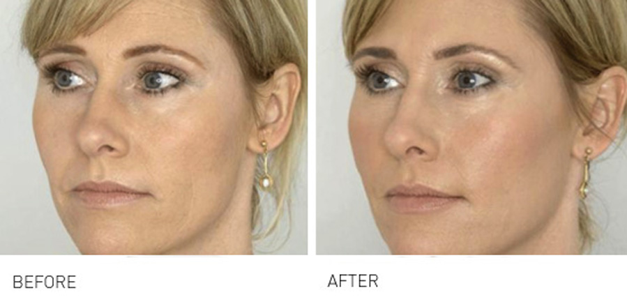 Cheeks & Midface Rejuvenation is a subtle yet effective way to enhance younger looking skin
