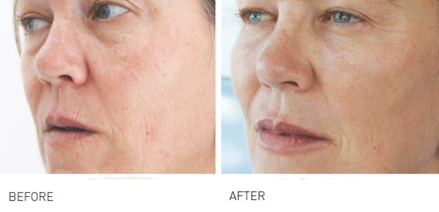 Cheeks & Midface Rejuvenation will take years off you
