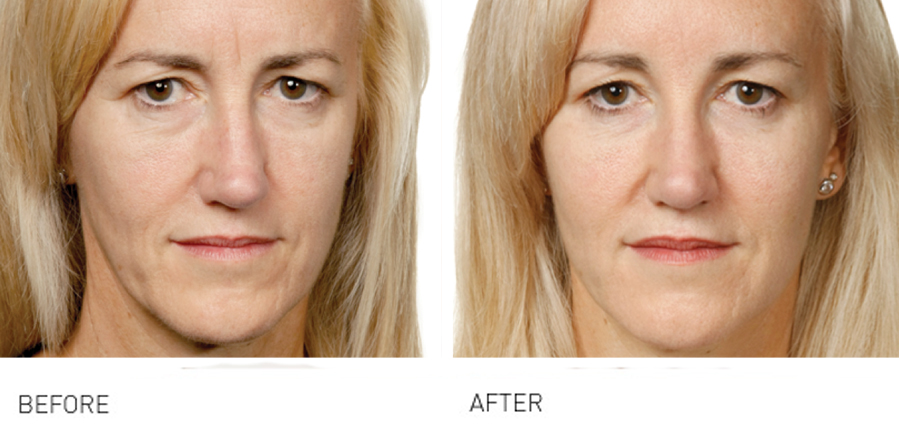 Cheeks & Midface Rejuvenation provide great results