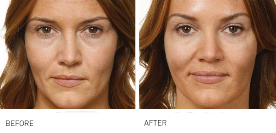 Cheeks & Midface Rejuvenation makes the face appear more youthful