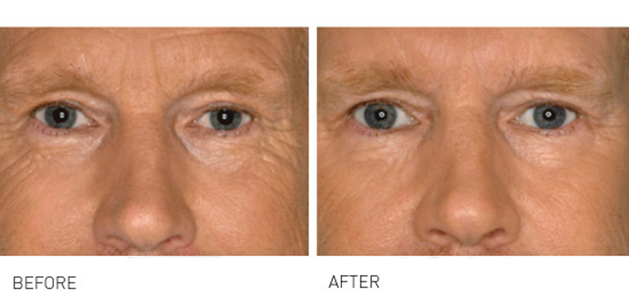 Eyes, Crows Feet & Tear Troughs can age your face prematurely
