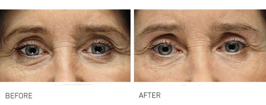 Tired looking Eyes, Crows Feet & Tear Troughs can make you look older