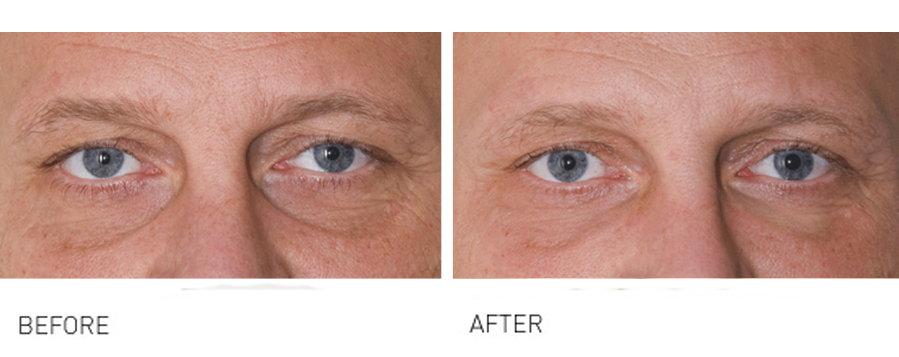 Volumise and soften tired looking Eyes, Crows Feet & Tear Troughs