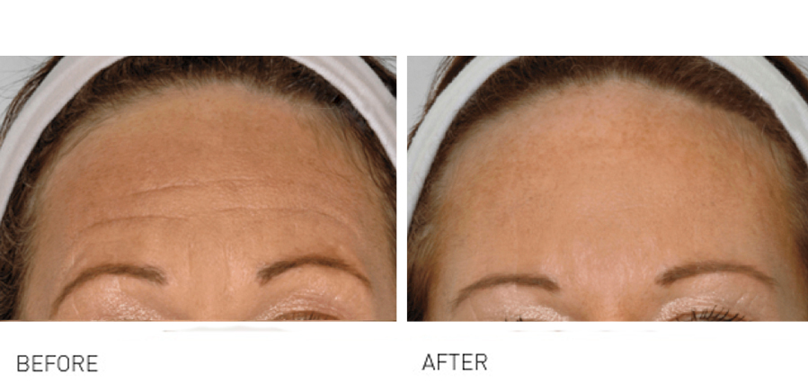 Frown & worry lines before and after show greater smoother looking skin