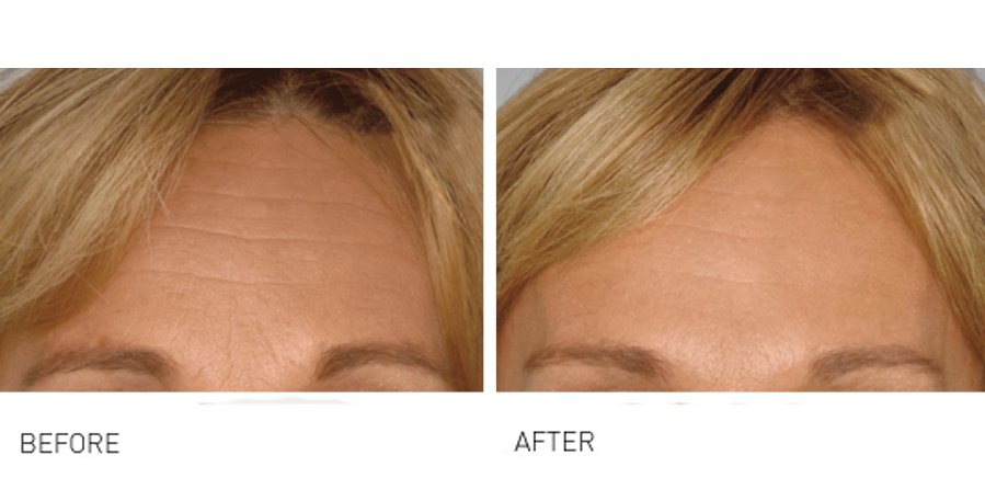 Look years younger with treatment to your frown and worry lines