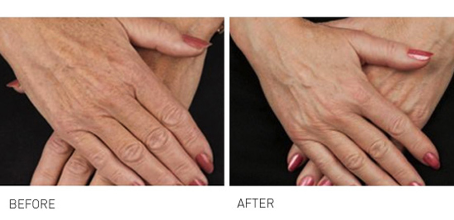 Hand Rejuvenation - are your hands making you look old 1