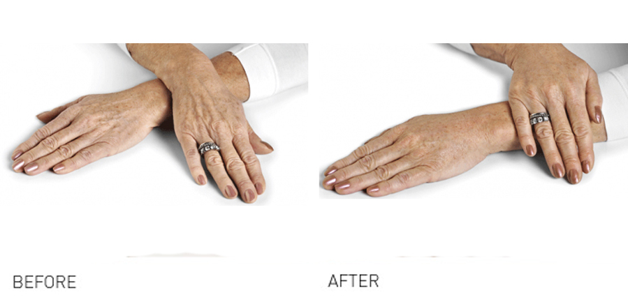 Hand Rejuvenation - are your hands making you look old 2
