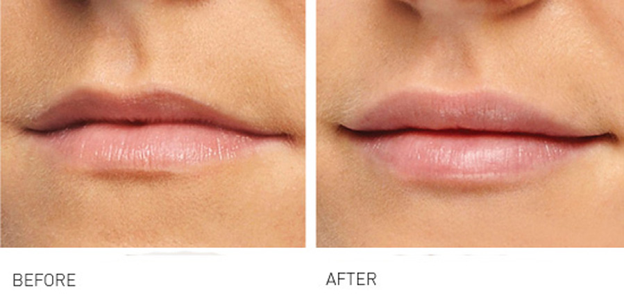 Lip volume and rejuvenation 1