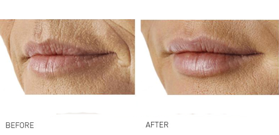 Lip volume & rejuvenation before and after