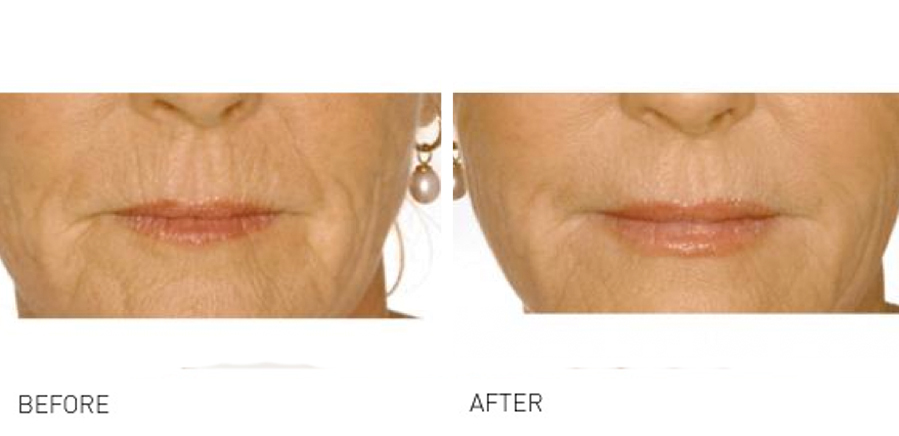 Lip volume & rejuvenation before and after shots taking years off you