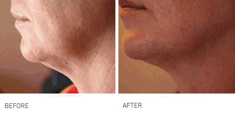 Lower face rejuvenation 1