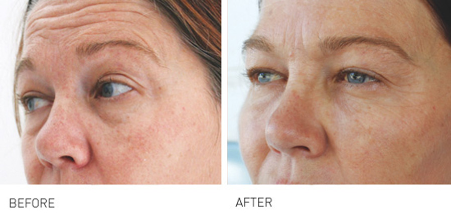 Skin Boosters before and after treatment